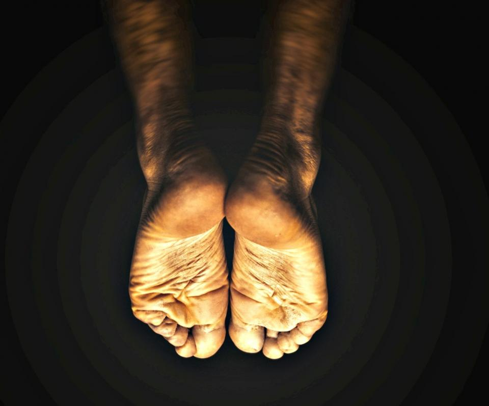 diabetic neuropathy, foot pain