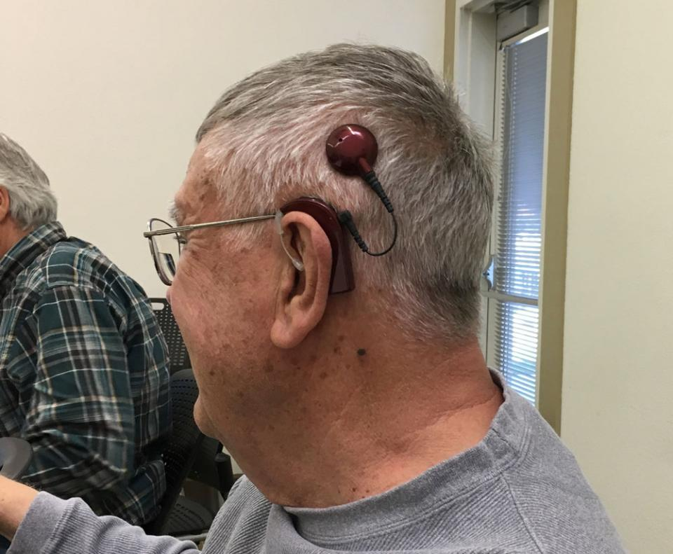 Cochlear Implants: My Experience
